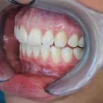 After Six Month Smile: Right